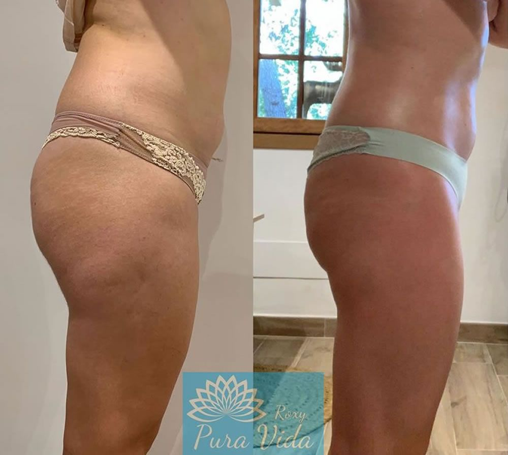 Sapphire Bellaction Duo Body & Face Remodeling Anti Cellulite Behandlung Beine Bauch