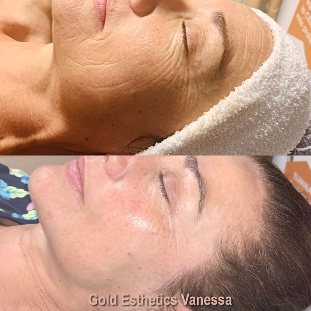 Sapphire Bellaction Duo Body & Face Remodeling Anti Cellulite Behandlung Gesicht